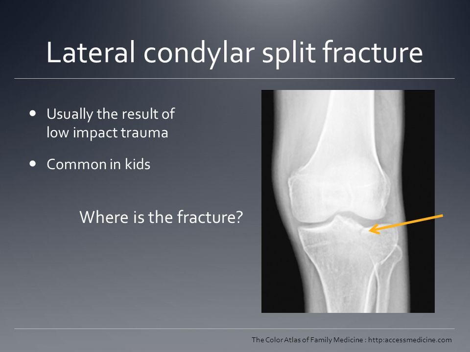 Lateral condylar split fracture Usually the result of low impact trauma Common in kids The Color Atlas of Family Medicine : http:accessmedicine.com Where is the fracture?