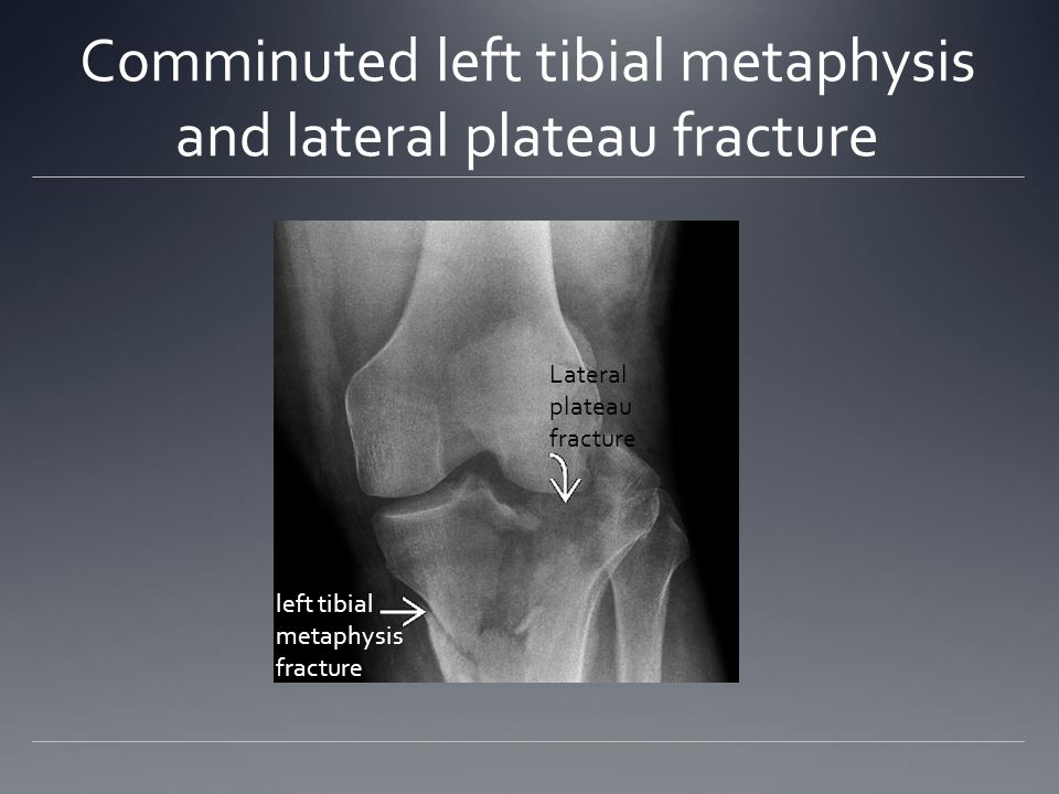 Comminuted left tibial metaphysis and lateral plateau fracture left tibial metaphysis fracture Lateral plateau fracture