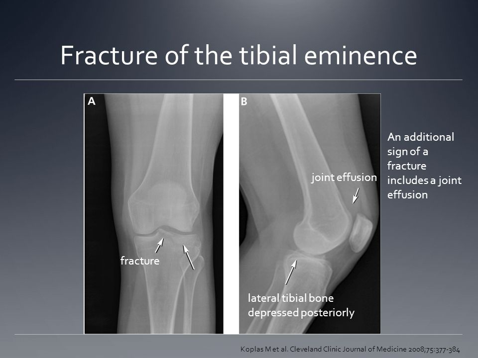 Fracture of the tibial eminence Koplas M et al. Cleveland Clinic Journal of Medicine 2008;75:377-384 joint effusion lateral tibial bone depressed post