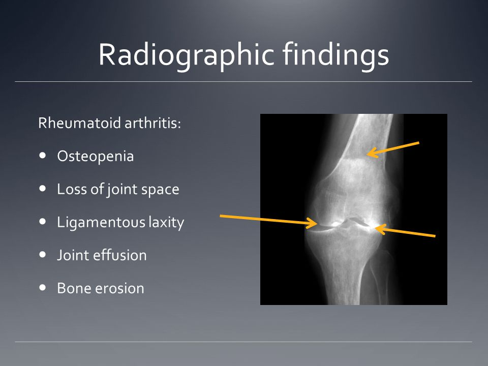 Radiographic findings Rheumatoid arthritis: Osteopenia Loss of joint space Ligamentous laxity Joint effusion Bone erosion