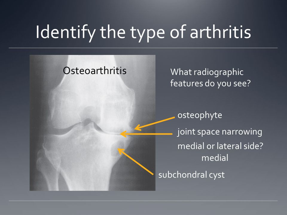 Identify the type of arthritis What radiographic features do you see.