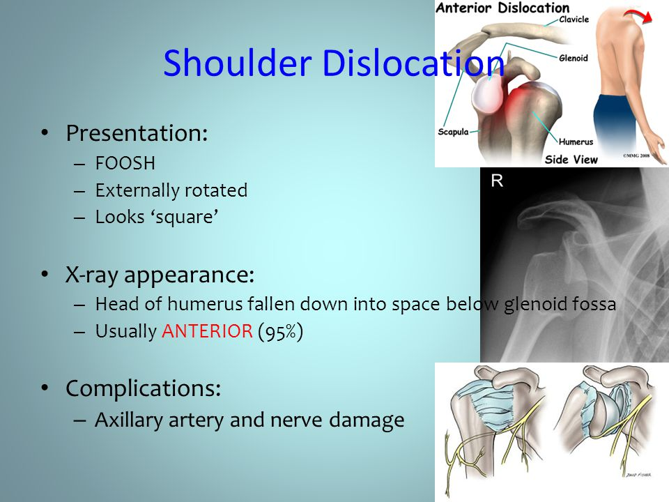 Shoulder Dislocation Presentation: – FOOSH – Externally rotated – Looks 'square' X-ray appearance: – Head of humerus fallen down into space below glen