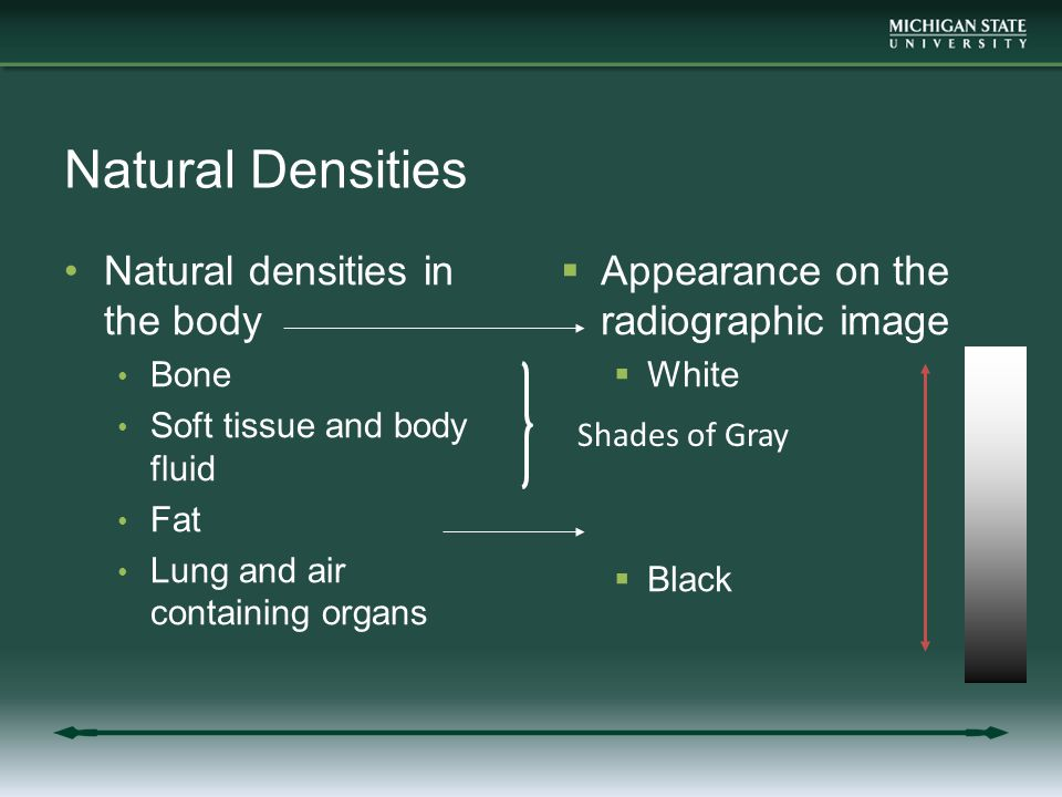 Natural Densities Natural densities in the body Bone Soft tissue and body fluid Fat Lung and air containing organs  Appearance on the radiographic image  White  Black Shades of Gray