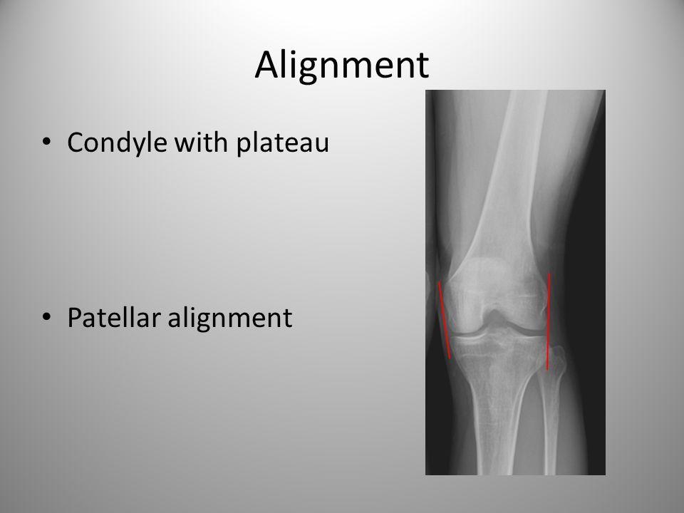 Alignment Condyle with plateau Patellar alignment