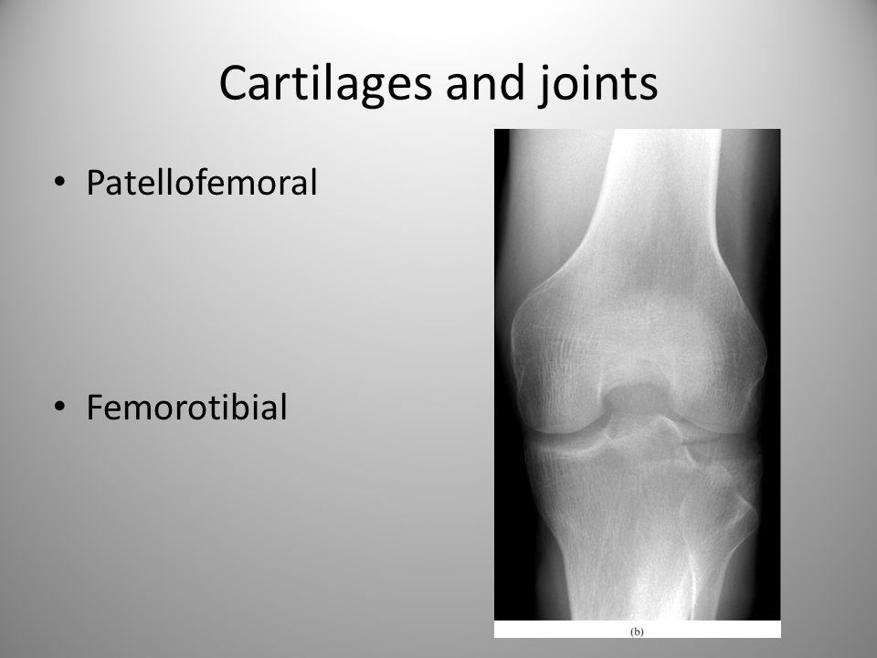 Cartilages and joints Patellofemoral Femorotibial