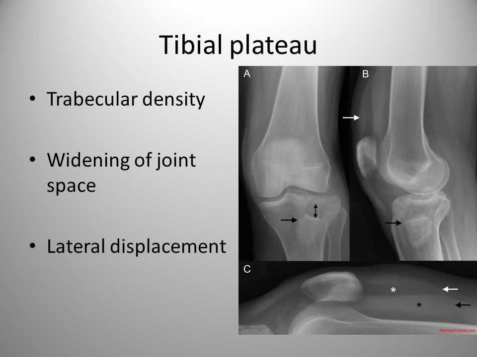 Tibial plateau Trabecular density Widening of joint space Lateral displacement