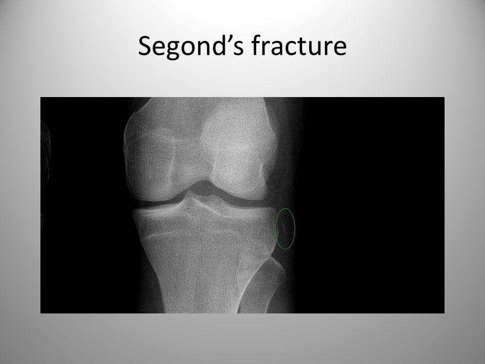 Segond's fracture