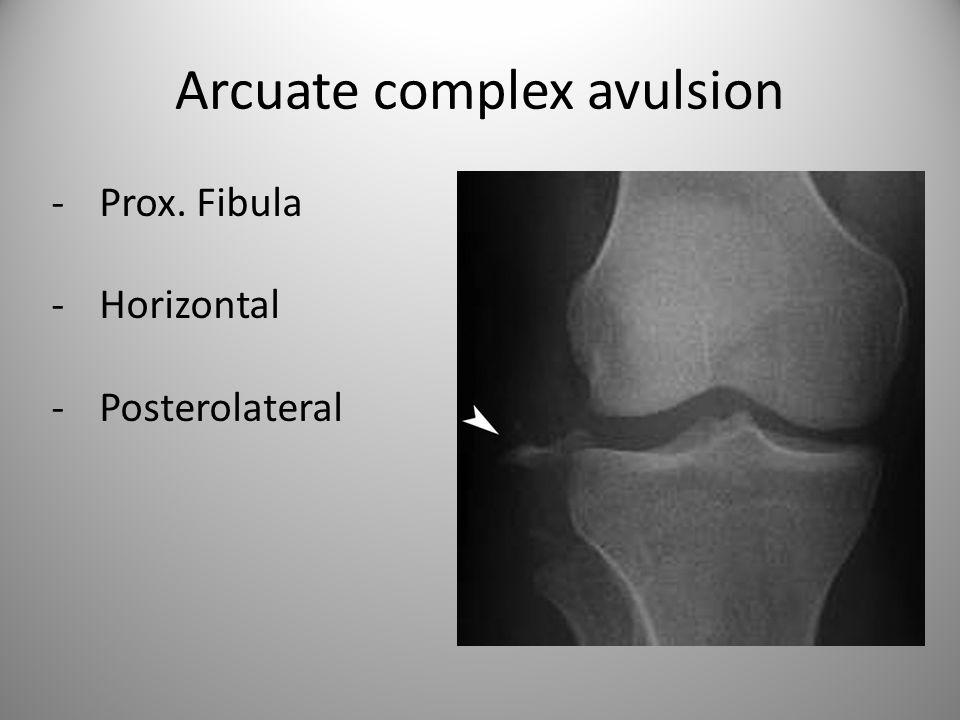 Arcuate complex avulsion -Prox. Fibula -Horizontal -Posterolateral