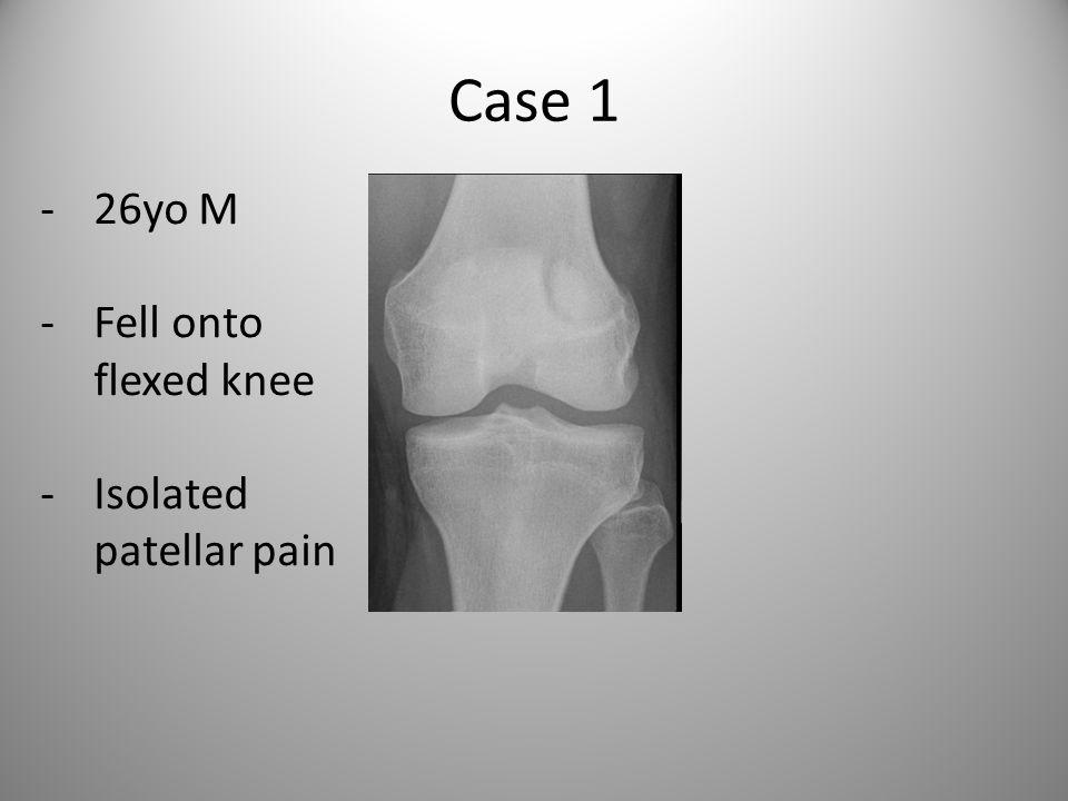Case 1 -26yo M -Fell onto flexed knee -Isolated patellar pain