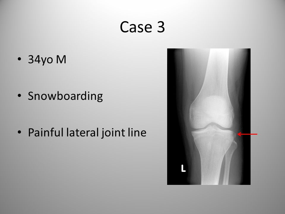 Case 3 34yo M Snowboarding Painful lateral joint line