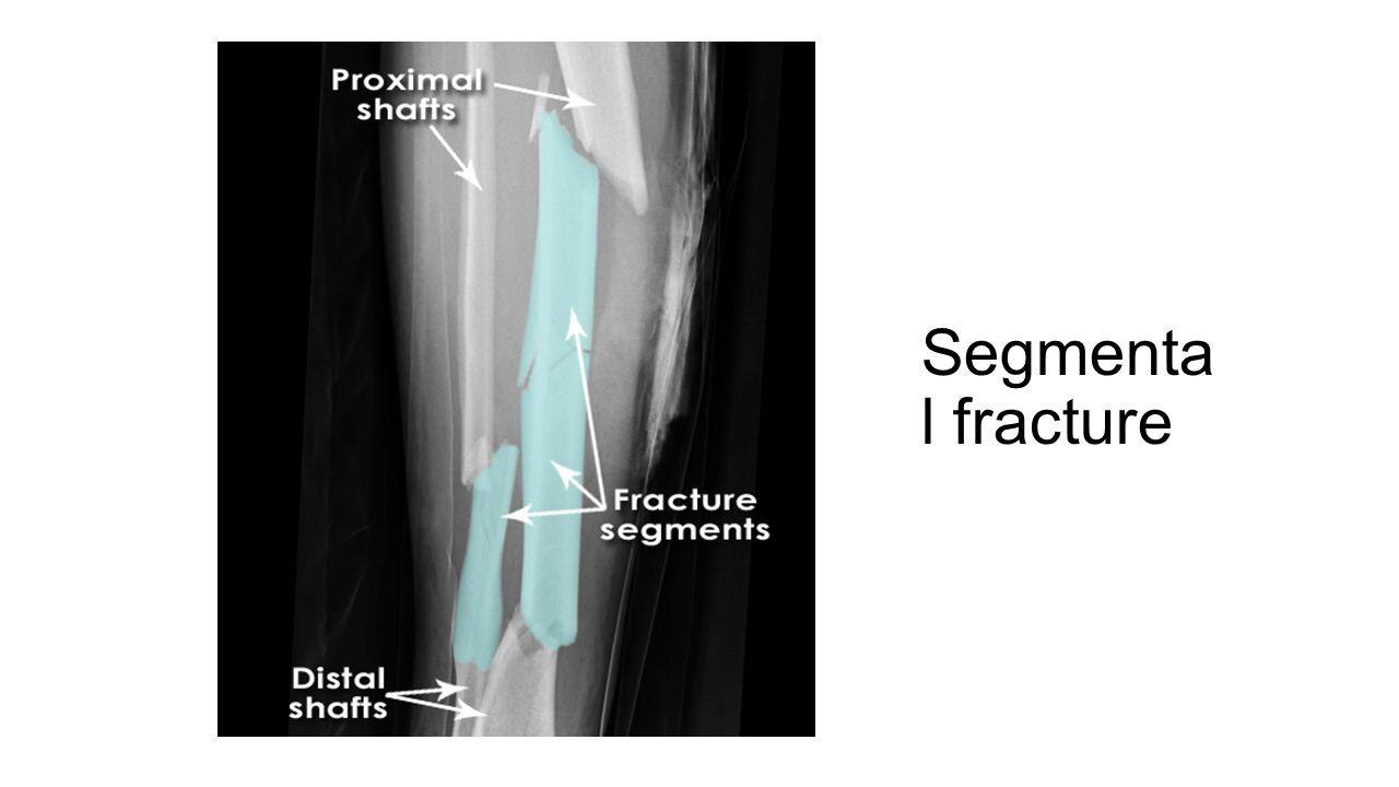 Segmenta l fracture