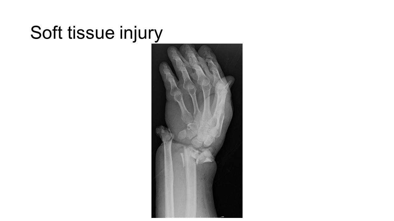 Soft tissue injury