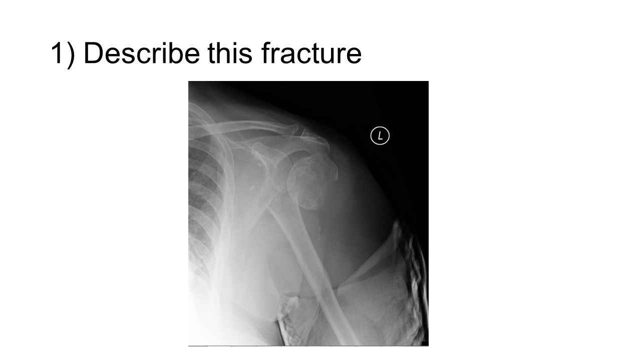 1) Describe this fracture