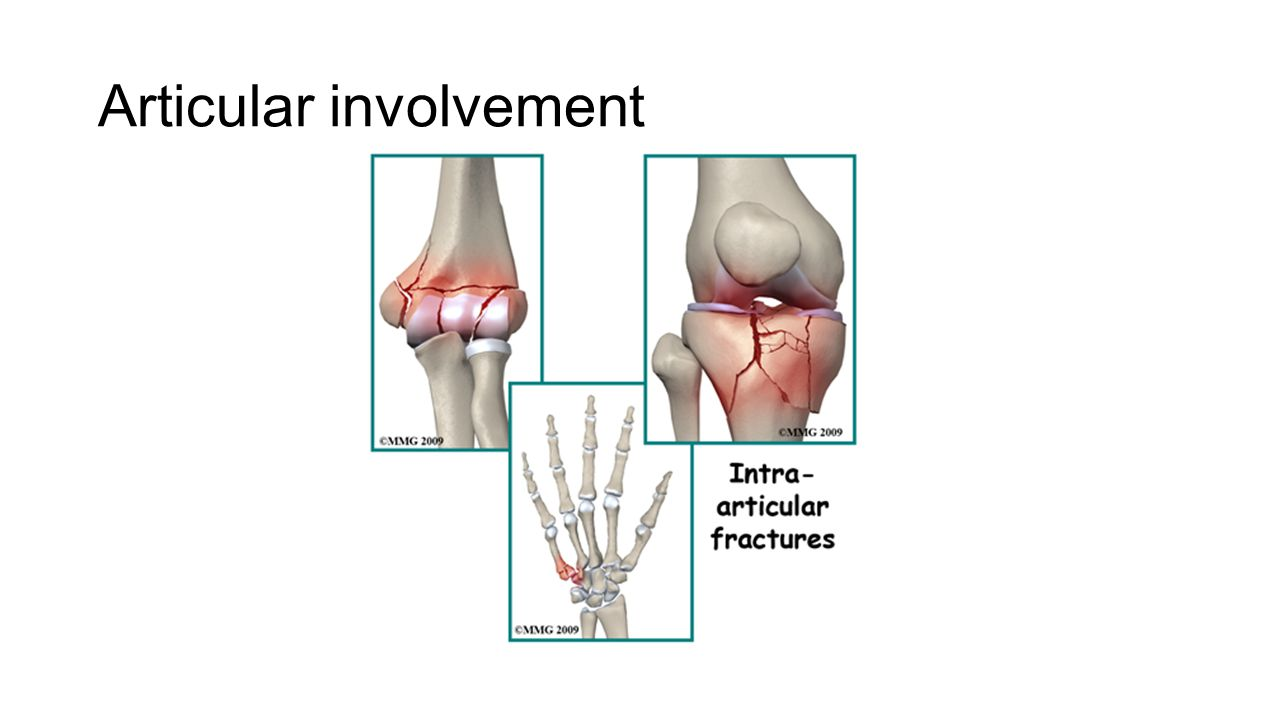 Comminuted/type A bone injury that results in more than 2 separate bone components is known as a comminuted fracture.