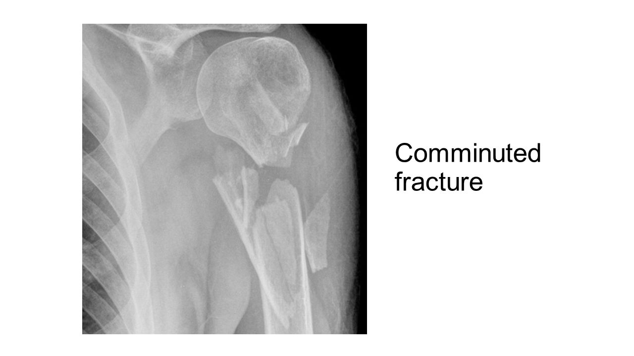 Intrinsic bone quality Osteoporosis is the commonest cause of pathological fractures.