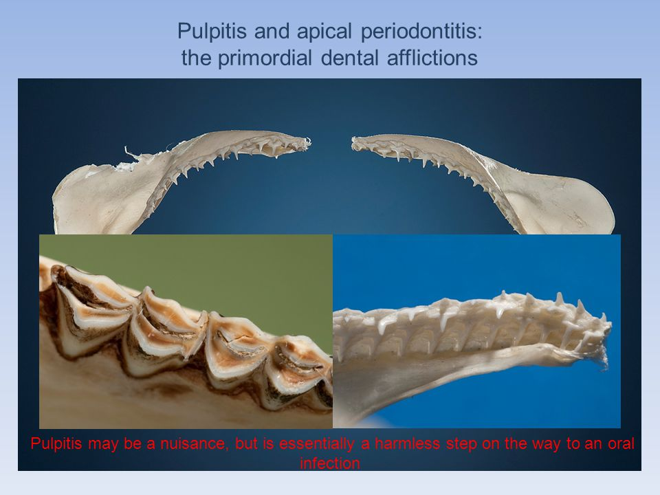 Pulpitis and apical periodontitis: the primordial dental afflictions Pulpitis may be a nuisance, but is essentially a harmless step on the way to an o