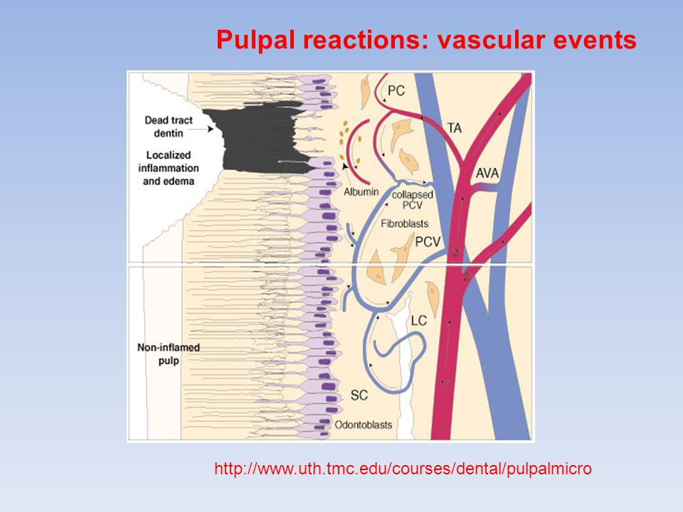 http://www.uth.tmc.edu/courses/dental/pulpalmicro Pulpal reactions: vascular events