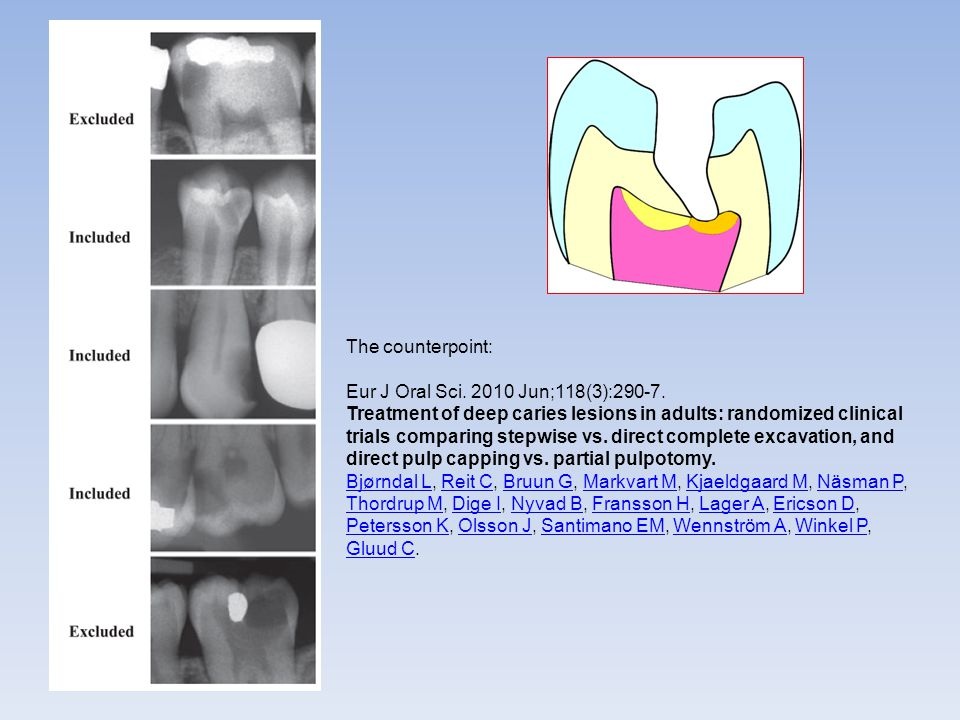 The counterpoint: Eur J Oral Sci. 2010 Jun;118(3):290-7. Treatment of deep caries lesions in adults: randomized clinical trials comparing stepwise vs.