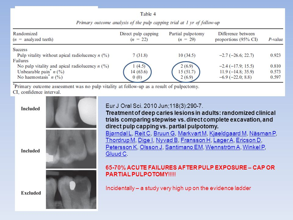 Eur J Oral Sci. 2010 Jun;118(3):290-7. Treatment of deep caries lesions in adults: randomized clinical trials comparing stepwise vs. direct complete e