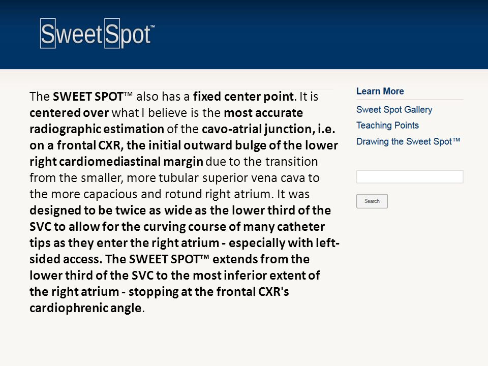The SWEET SPOT™ also has a fixed center point. It is centered over what I believe is the most accurate radiographic estimation of the cavo-atrial junc