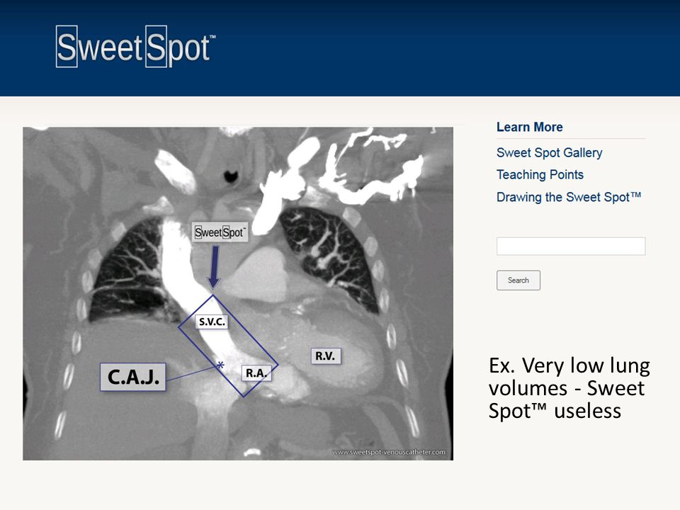 Ex. Very low lung volumes - Sweet Spot™ useless