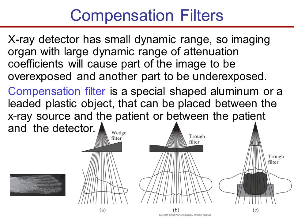 Compensation Filters X-ray detector has small dynamic range, so imaging organ with large dynamic range of attenuation coefficients will cause part of