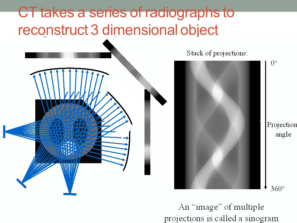 CT takes a series of radiographs to reconstruct 3 dimensional object