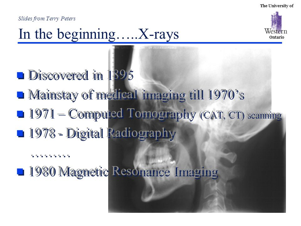 The University of Ontario Slides from Terry Peters In the beginning…..X-rays n Discovered in 1895 n Mainstay of medical imaging till 1970's n 1971 – C
