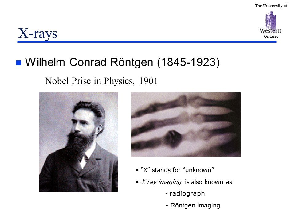 """The University of Ontario X-rays n Wilhelm Conrad Röntgen (1845-1923) Nobel Prise in Physics, 1901 """"X"""" stands for """"unknown"""" X-ray imaging is also know"""