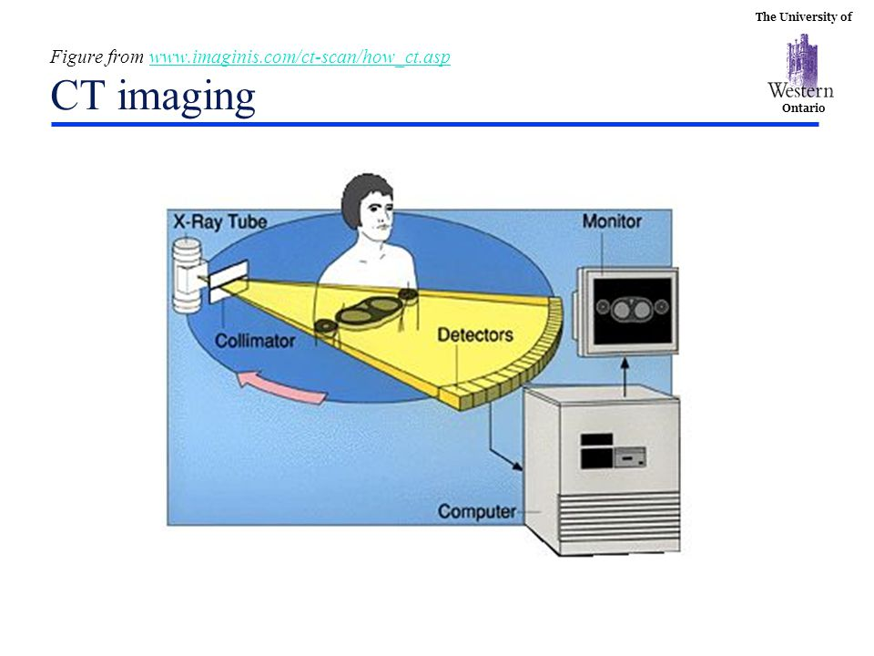 The University of Ontario Figure from www.imaginis.com/ct-scan/how_ct.asp CT imagingwww.imaginis.com/ct-scan/how_ct.asp