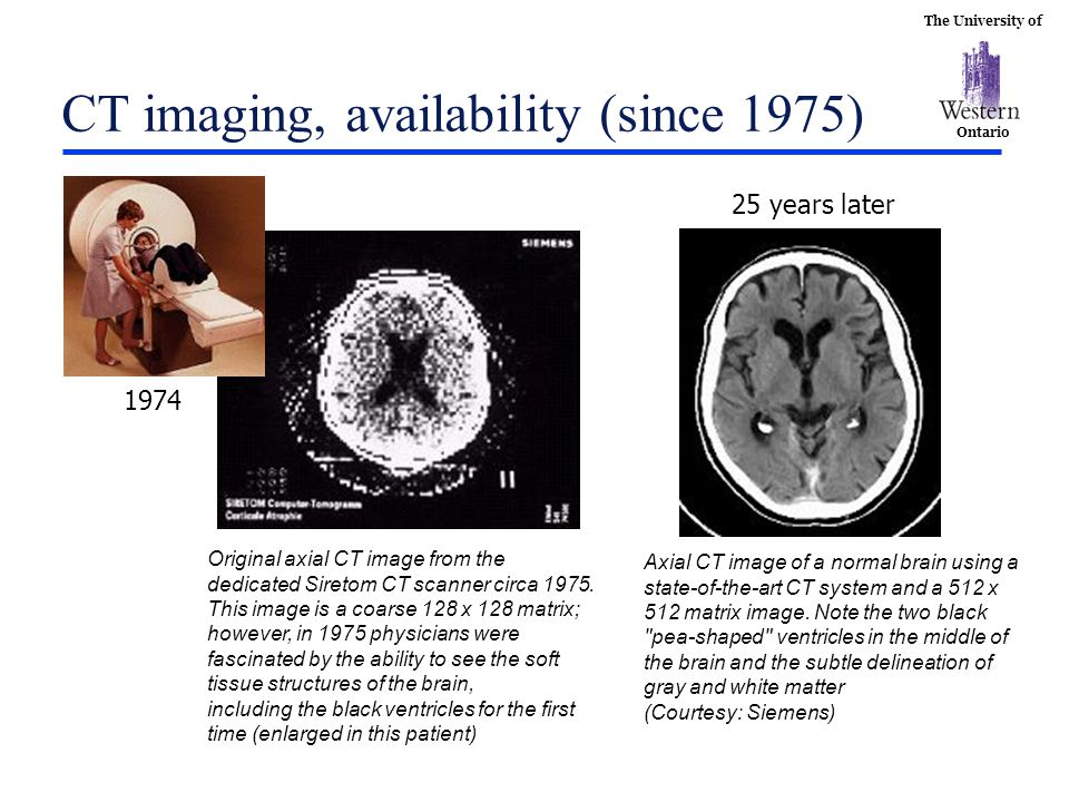 The University of Ontario CT imaging, availability (since 1975) The EMI-Scanner Original axial CT image from the dedicated Siretom CT scanner circa 19