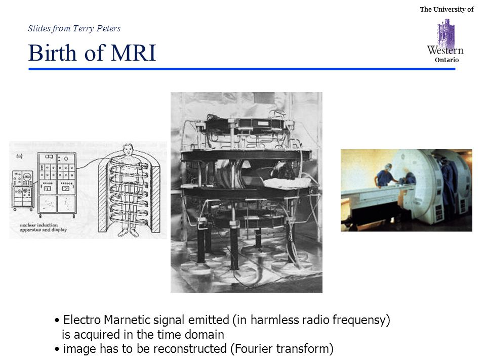 The University of Ontario Slides from Terry Peters Birth of MRI Early Thorax Image Nottingham Electro Marnetic signal emitted (in harmless radio frequ