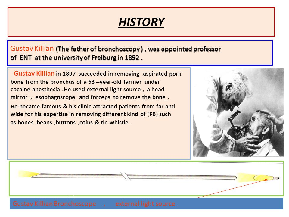 HISTORY Gustav Killian in 1897 succeeded in removing aspirated pork bone from the bronchus of a 63 – year-old farmer under cocaine anesthesia.He used external light source, a head mirror, esophagoscope and forceps to remove the bone.