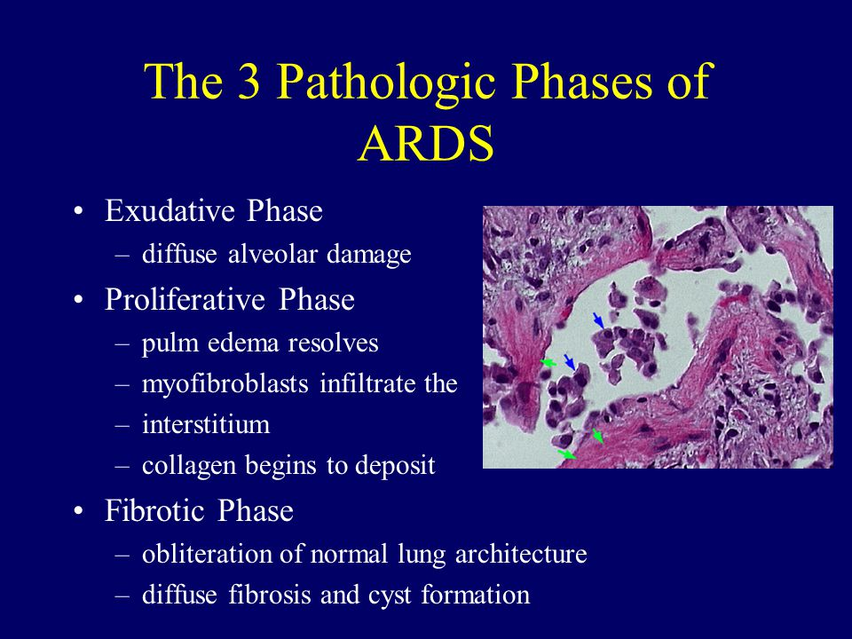 The 3 Pathologic Phases of ARDS Exudative Phase –diffuse alveolar damage Proliferative Phase –pulm edema resolves –myofibroblasts infiltrate the –interstitium –collagen begins to deposit Fibrotic Phase –obliteration of normal lung architecture –diffuse fibrosis and cyst formation