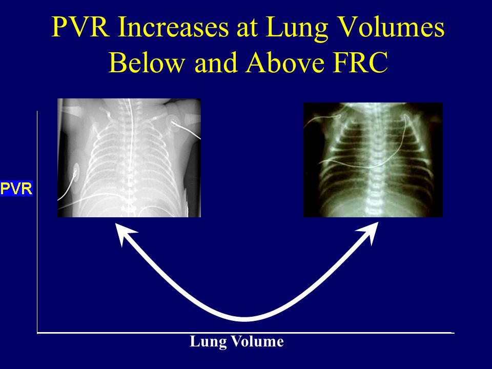 PVR Increases at Lung Volumes Below and Above FRC Lung Volume