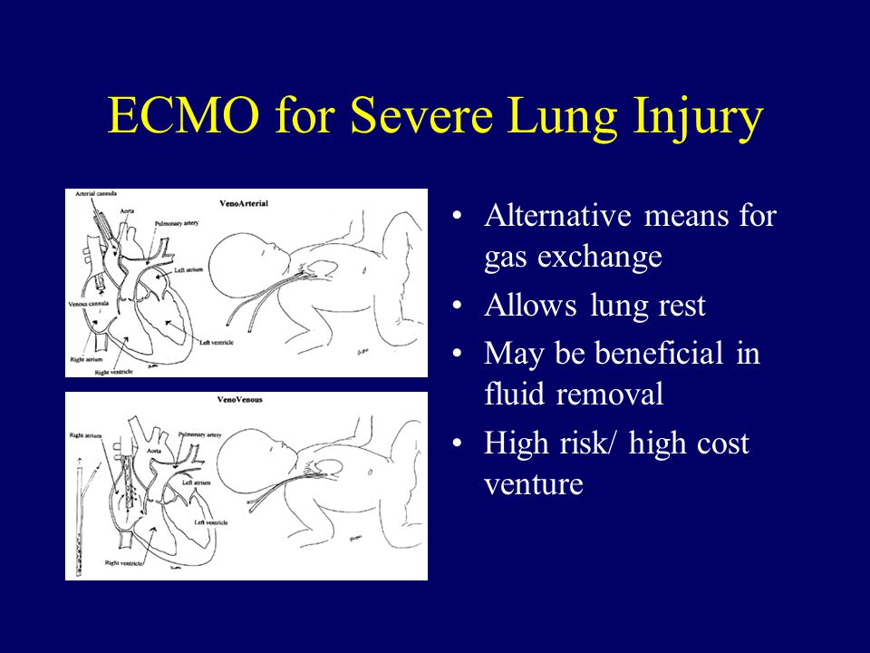 ECMO for Severe Lung Injury Alternative means for gas exchange Allows lung rest May be beneficial in fluid removal High risk/ high cost venture