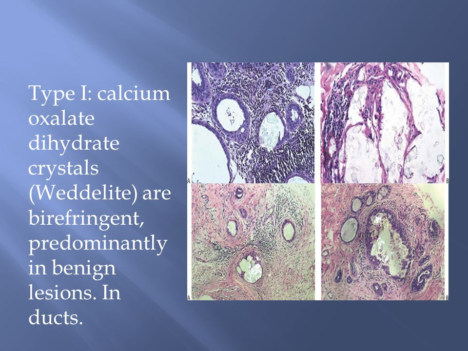 Type I: calcium oxalate dihydrate crystals (Weddelite) are birefringent, predominantly in benign lesions. In ducts.