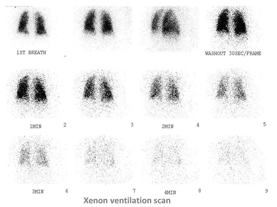 Xenon ventilation scan