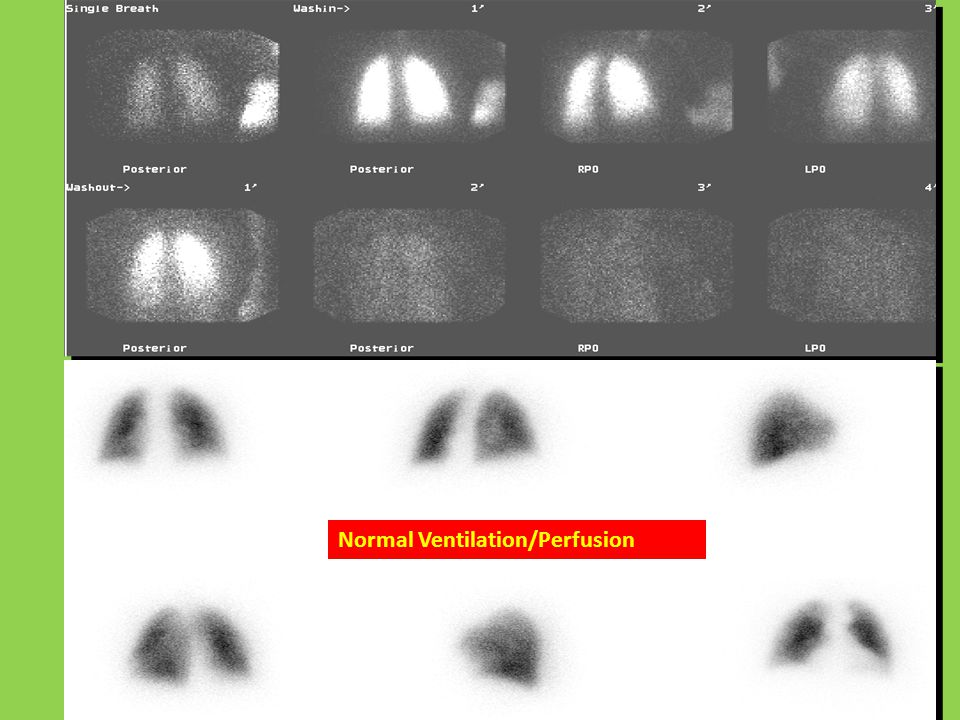 Normal Ventilation/Perfusion