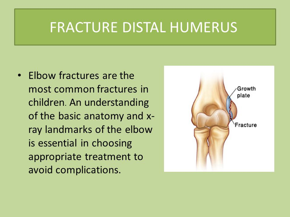 FRACTURE DISTAL HUMERUS Elbow fractures are the most common fractures in children.