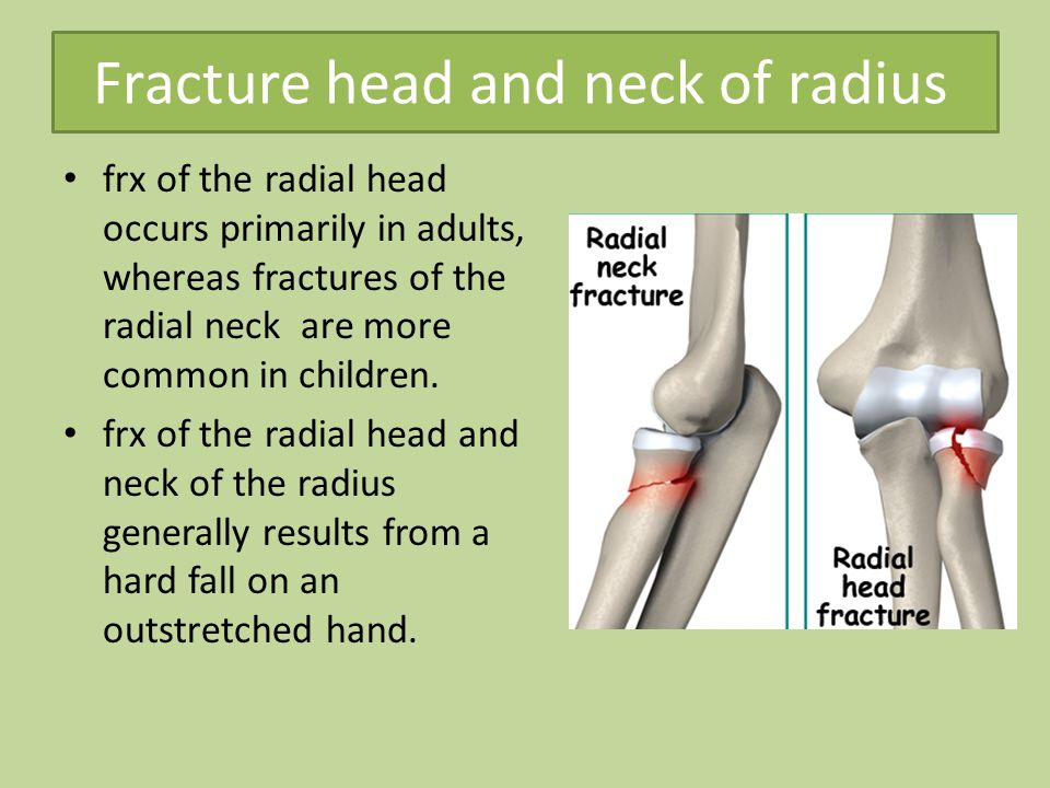 Fracture head and neck of radius frx of the radial head occurs primarily in adults, whereas fractures of the radial neck are more common in children.