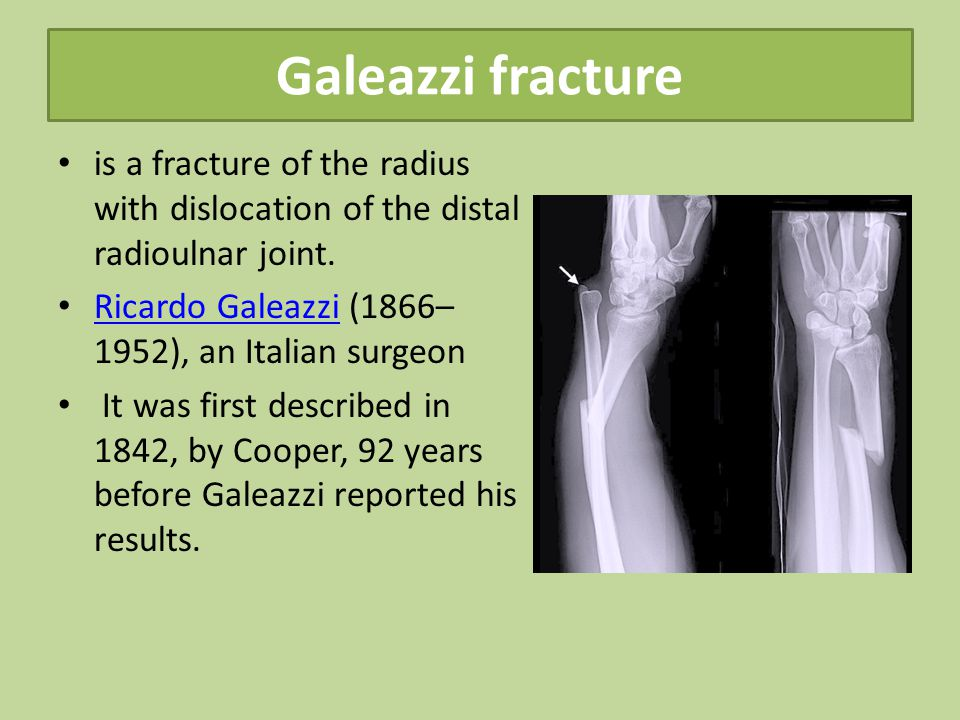 Galeazzi fracture is a fracture of the radius with dislocation of the distal radioulnar joint.