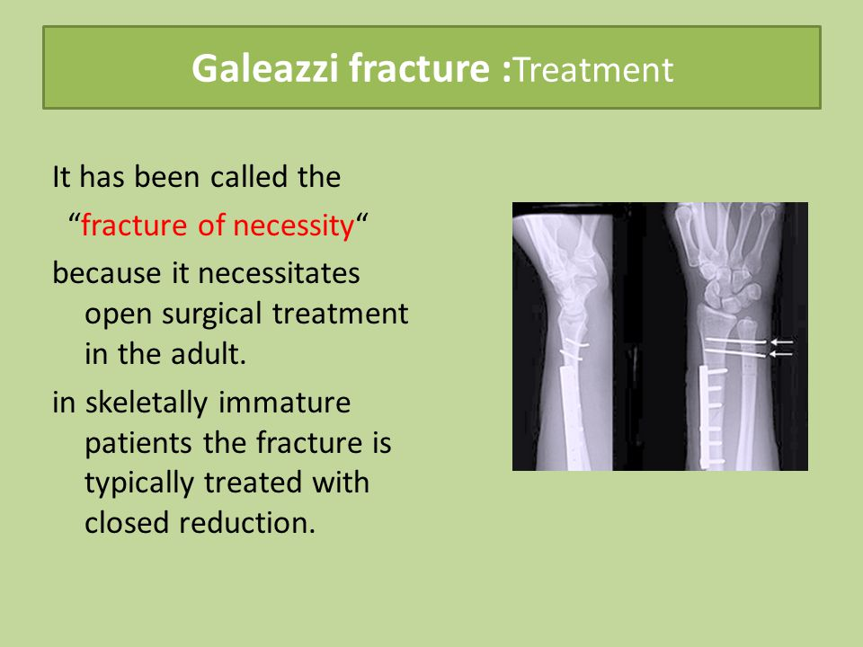 Galeazzi fracture : Treatment It has been called the fracture of necessity because it necessitates open surgical treatment in the adult.