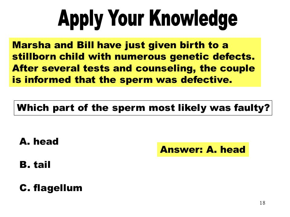 17 Apply Your Knowledge Harry, age 57 will have a bilateral orchidectomy. Which of the following effects from this surgery should be expected? A. Fail
