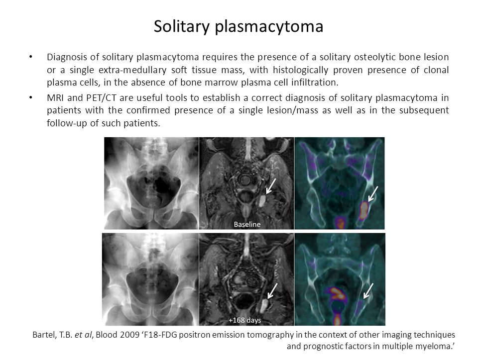 Solitary plasmacytoma Diagnosis of solitary plasmacytoma requires the presence of a solitary osteolytic bone lesion or a single extra-medullary soft tissue mass, with histologically proven presence of clonal plasma cells, in the absence of bone marrow plasma cell infiltration.