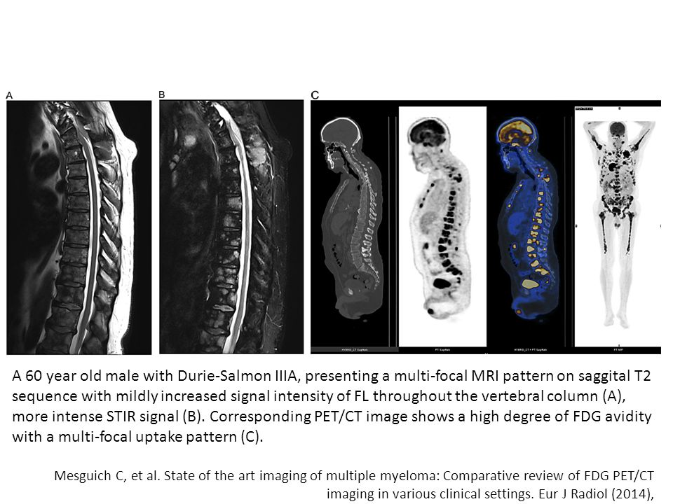 A 60 year old male with Durie-Salmon IIIA, presenting a multi-focal MRI pattern on saggital T2 sequence with mildly increased signal intensity of FL throughout the vertebral column (A), more intense STIR signal (B).