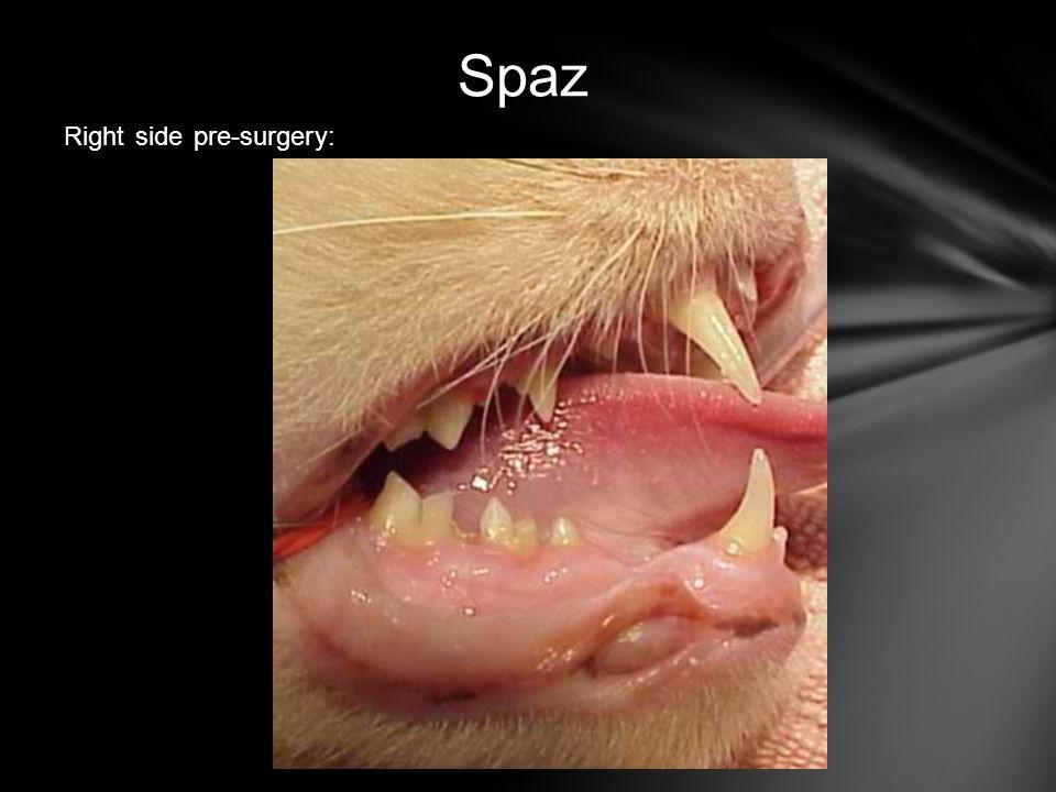 Spaz Right side pre-surgery:
