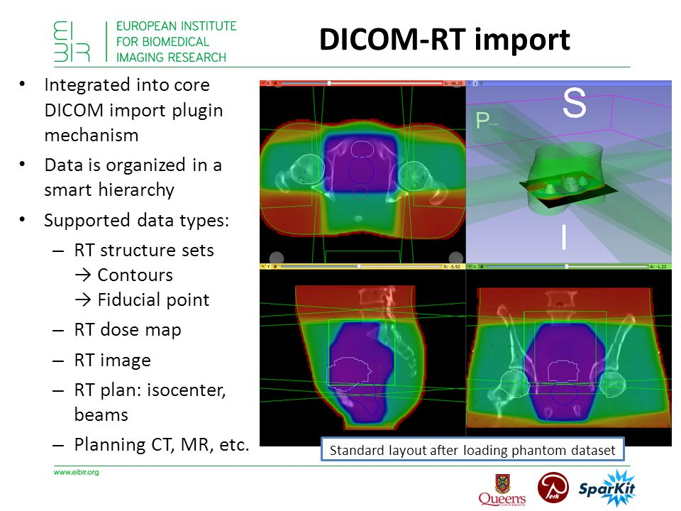 Integrated into core DICOM import plugin mechanism Data is organized in a smart hierarchy Supported data types: – RT structure sets → Contours → Fiduc