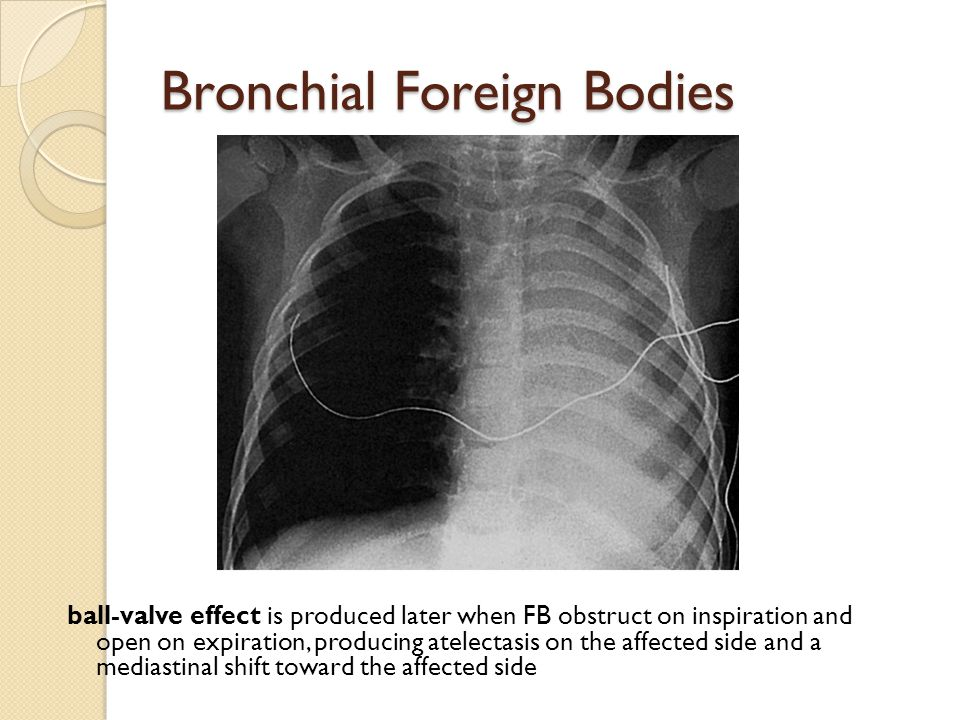 Bronchial Foreign Bodies ball-valve effect is produced later when FB obstruct on inspiration and open on expiration, producing atelectasis on the affe