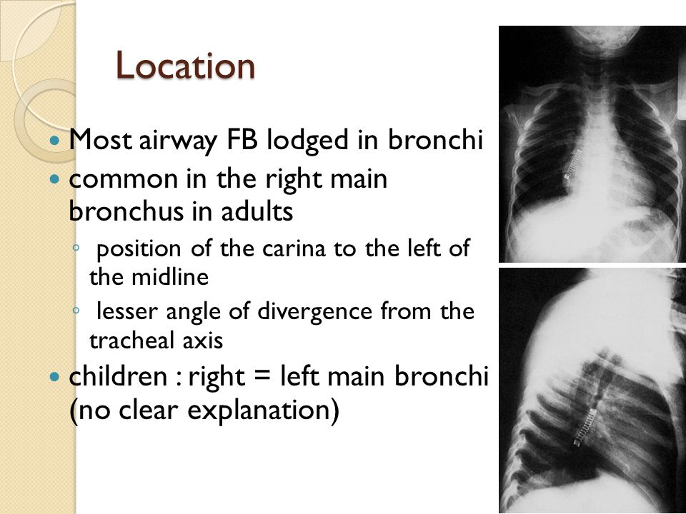 Location Most airway FB lodged in bronchi common in the right main bronchus in adults ◦ position of the carina to the left of the midline ◦ lesser ang